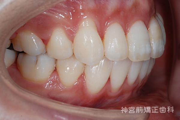 スクリュー と は アンカー 歯科矯正用アンカースクリューを用いた矯正治療